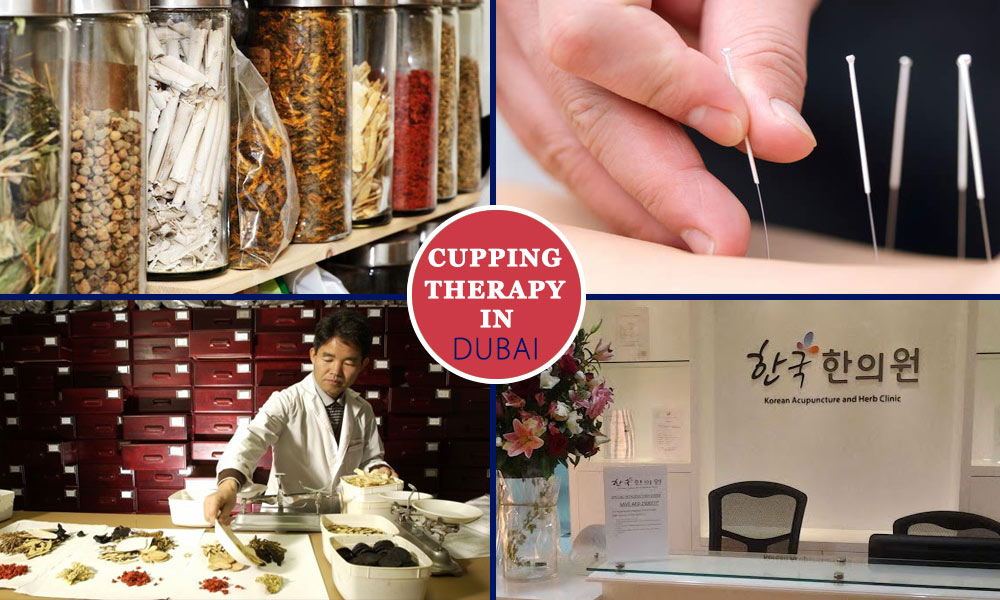 Cupping Therapy in Dubai